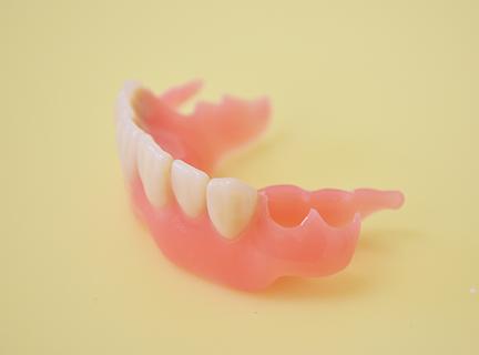ノンクラスプデンチャー(金属のバネを使用しない入れ歯)